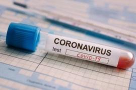 Coronavirus: Ya son 192 las muertes y 3892 los infectados en el país