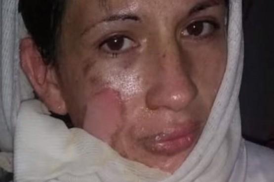 La mujer que sufrió violencia de género.