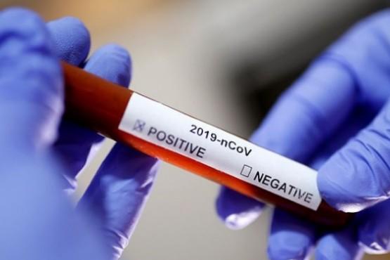 Magallanes tiene la tasa más alta del país de contagiados de Coronavirus