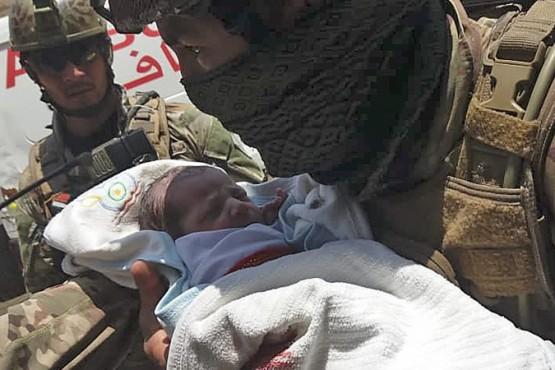 Un bebé recibió dos disparos en medio de un atentado terrorista y sobrevivió
