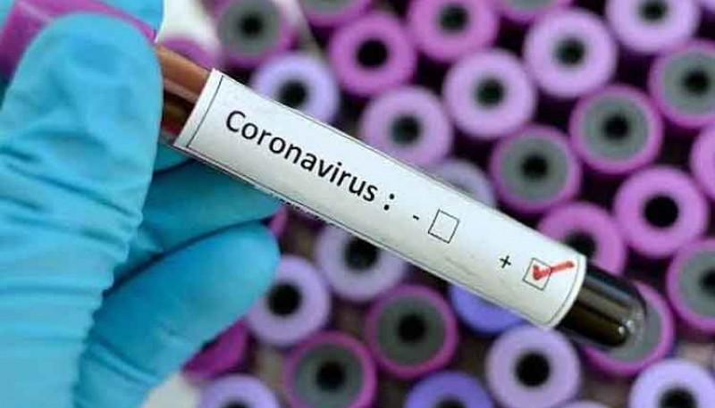 Coronavirus: Ya son 452 las víctimas fatales por el COVID-19