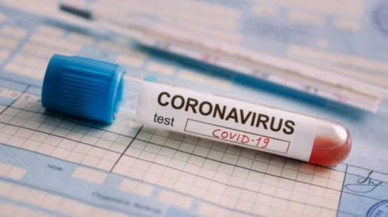Argentina desarrolla nuevo kit para detectar el coronavirus