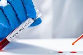 Coronavirus: se descartaron 688 casos en la provincia de Santa Cruz