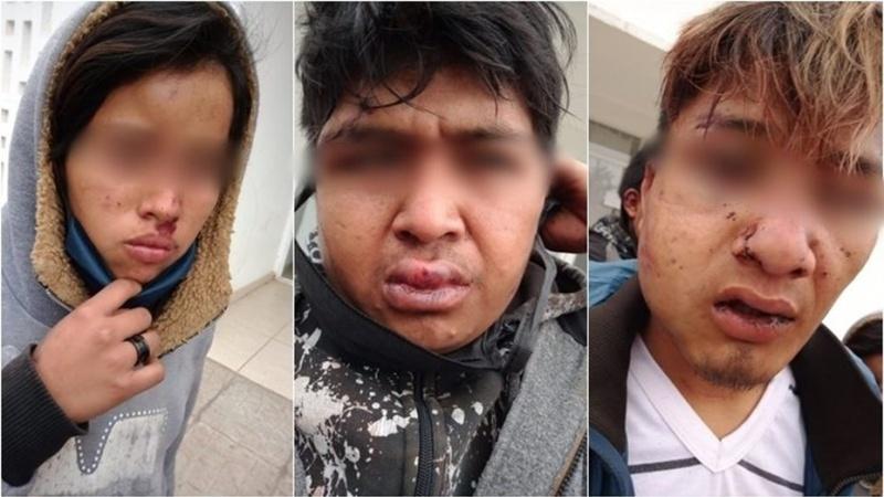 Fueron golpeados por la policía.