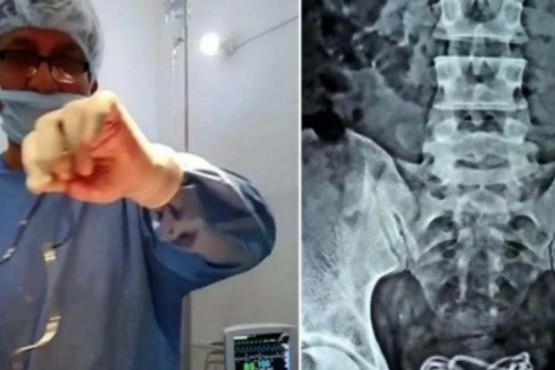 Fue al hospital por un fuerte dolor de panza y descubrieron que tenía un cargador de celular en la vejiga