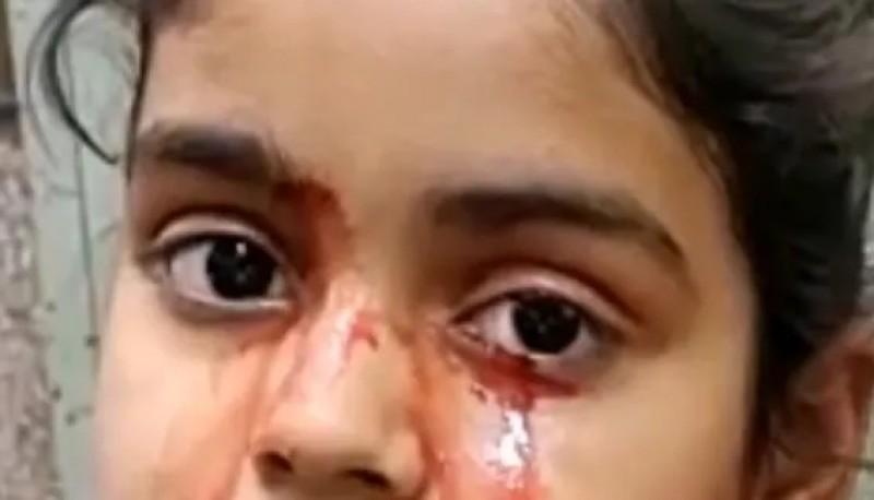 El extraño caso de una nena que sangra por los ojos