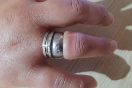 Se le trabó un anillo y tuvo que llamar a los bomberos para que la salven