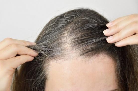 Seis causas por las que pueden aparecer canas en el pelo