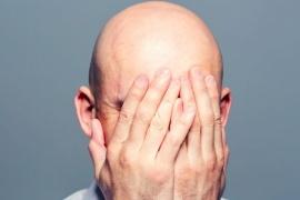 Por qué la calvicie debería ser considerada como un factor de riesgo