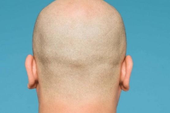 Coronavirus: Hombres con calvicie tienen un 40% más de probabilidades de padecerlo