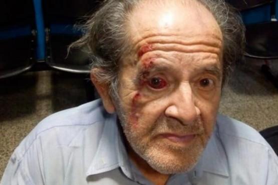 Un guardia golpeó a un abuelo por no dejar el changuito del súper en su lugar