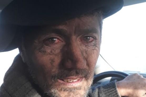 Luchó contra el fuego en su campo y la foto se hizo viral