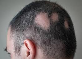 Aseguran que la alopecia podría aumentar durante el aislamiento
