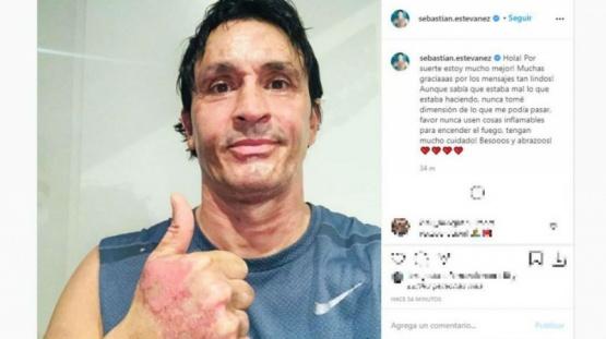 Sebastián Estevanez mostró cómo quedó su cara luego del accidente