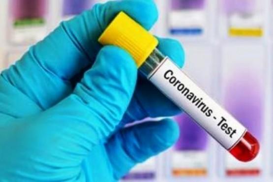 Coronavirus en Santa Cruz: 87 nuevos positivos en seis localidades