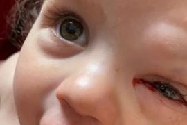La extraña enfermedad que hace que una niña de un año llore sangre