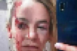 El Calafate  Joven detenido por brutal agresión a su ex pareja
