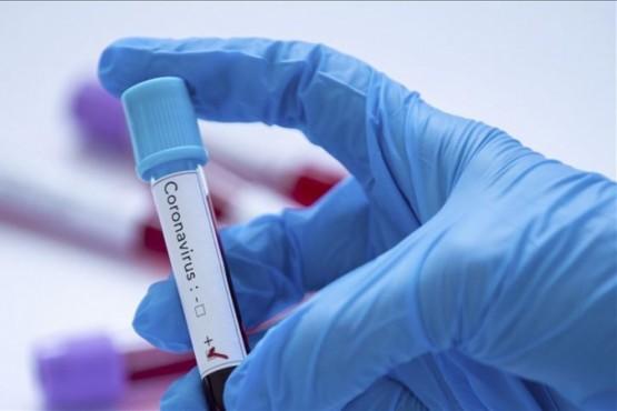29.323 son los casos positivos en Santa Cruz desde el inicio de la pandemia