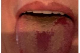 """Coronavirus: qué es la """"lengua Covid"""", el nuevo síntoma detectado en Europa"""