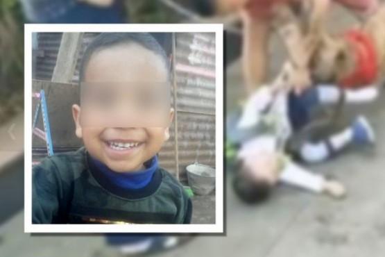 Un pitbull desfiguró a un niño: crudo relato del padre