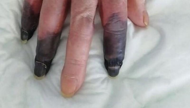 Perdió 3 dedos a raíz de una gangrena generada por el coronavirus