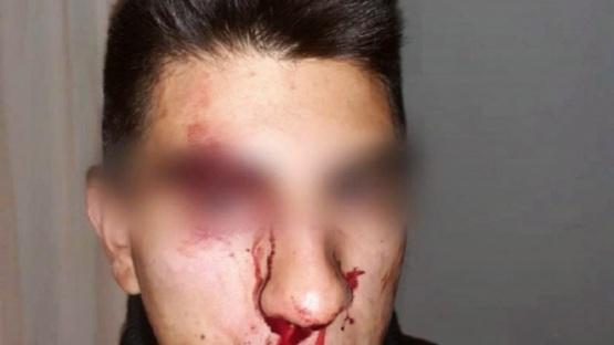 Policías fueron brutalmente agredidos en Cholila