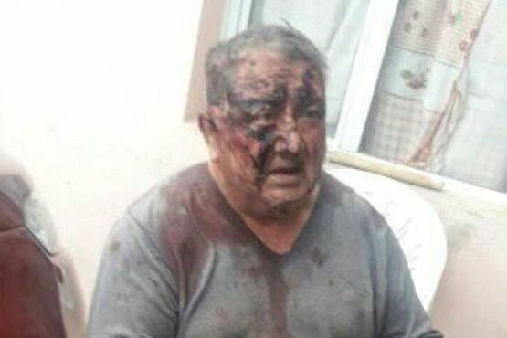 Le robaron y golpearon brutalmente a un abuelo en el barrio Los Lolos