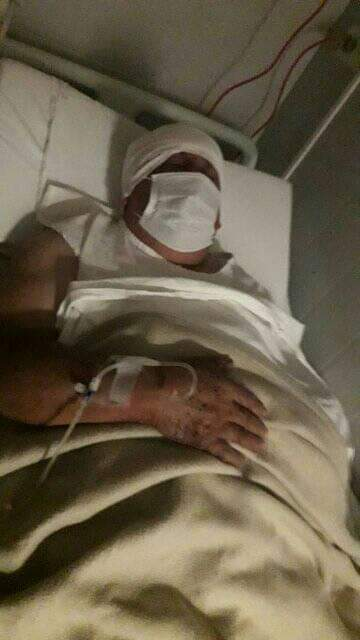 El hombre recibió las curaciones en el Hospital Regional.