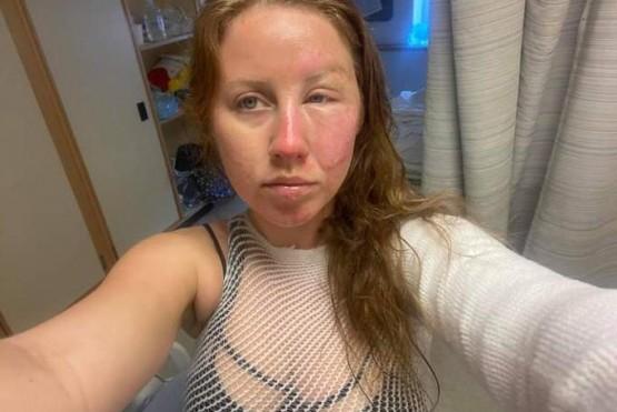 Un mozo quiso flambear un postre pero en un descuido le quemó la cara a su clienta