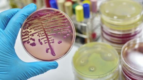 Los antibióticos nuevos no combaten la farmacorresistencia de bacterias peligrosas
