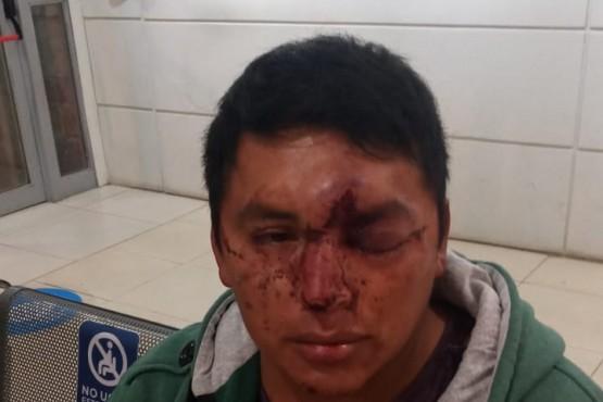 El hombre con lesiones en la cara.