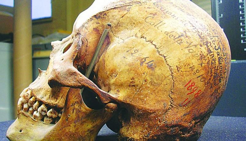 El cráneo de Liempichún.