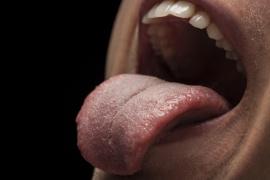 Qué es la macroglosia, la extraña enfermedad que vinculan con el coronvirus