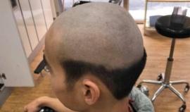 Le hizo un corte de pelo ridículo a su hijo, para evitar que salga a la calle y se contagie